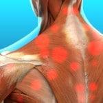 myofascial pain thera[y